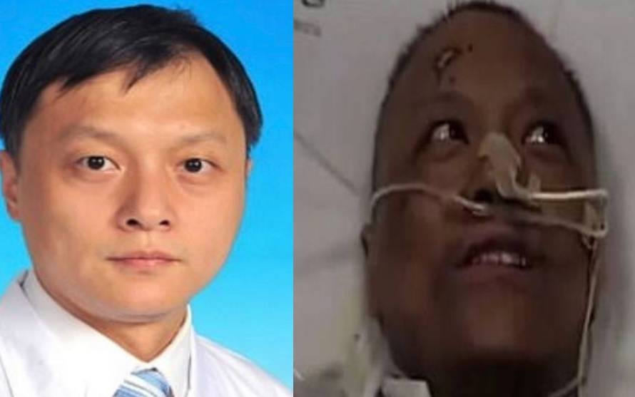 covid 19 stricken chinese doctor whose skin changed colour passed away