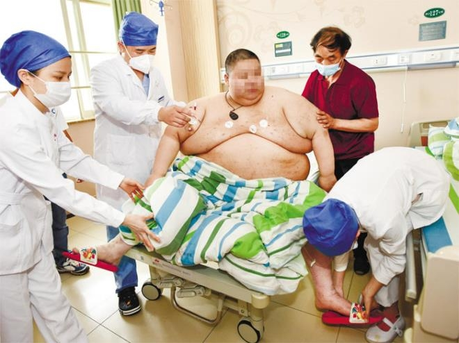 chinese man gains over 100kg after long covid 19 isolation
