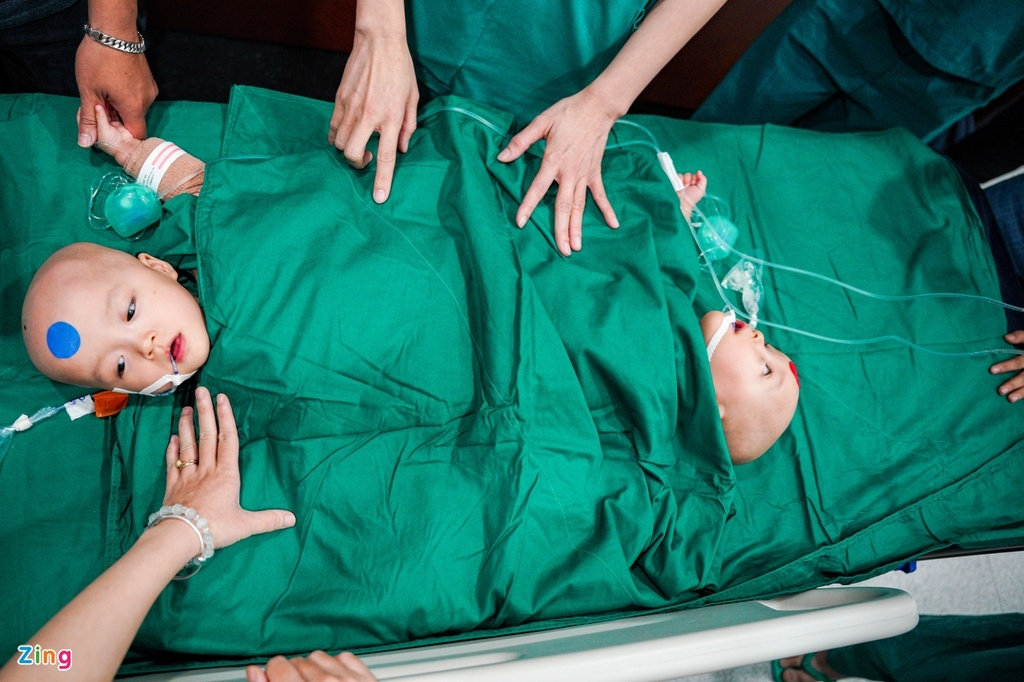 miracle of vietnamese co joined twins successfully separated after a 9 hour surgery