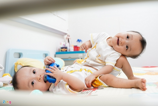 Miracle of Vietnamese co-joined twins successfully separated after a 9-hour-surgery