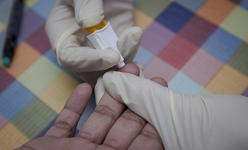 vietnam a top 4 nation with best hivaids treatment outcomes worldwide