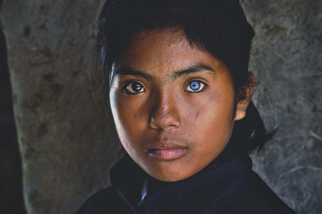 Vietnamese Girl with Different-Colored Eyes Stuns the World