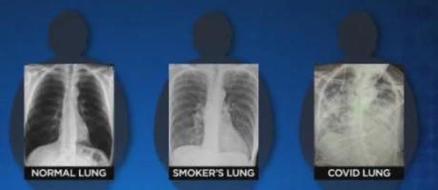 Lungs damage from Covid-19 disease worse than the worst smokers