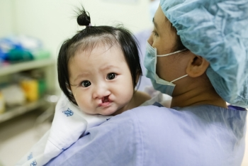 operation smile launches fundraising campaign on zalopay
