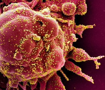 anti parasite drug can kill coronavirus found by researchers in australia