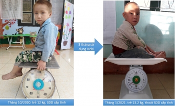 World Vision supports malnourished children in Dien Bien Province