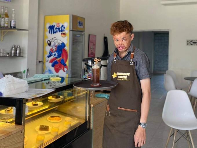 Disfigured Man in Kon Tum Runs Coffee Shop