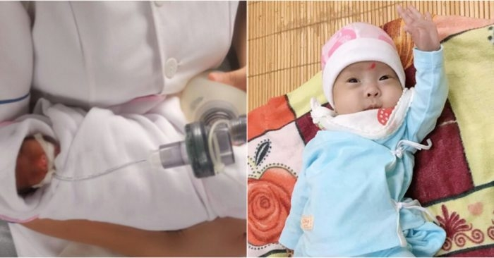 480g premature baby survives in Vinh Phuc