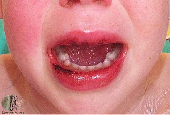 kawasaki disease causes symptoms diagnosis treatment link to coronavirus
