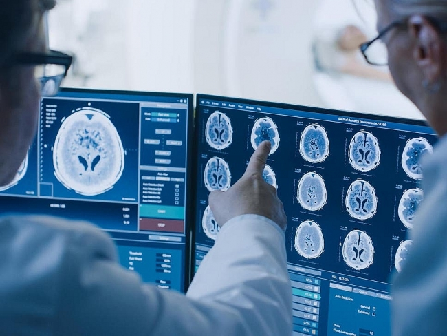 Scientists fear potential wave of COVID-linked brain damage