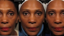 Facial exercises may make you look 3 years younger: Study