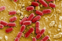 antimicrobial resistance a hard to solve quizz for vietnam