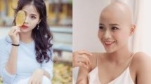 19 year old girl with cancer attends beauty pageant to spread optimism