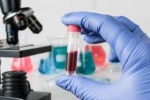 rare new hiv strain identified